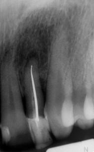 Powtórne leczenie kanałowe górnej dwójki. W trakcie zabiegu usunięto tkwiący w kanale ćwiek srebrny, stosowany dawniej jako wypełnienie.