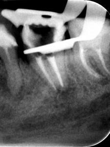 Kontynuacja leczenia kanałowego dolnej siódemki rozpoczętego poza gabinetem. Nietypowa anatomia zęba typu C-shape była przyczyną perforacji oraz niemooności odnalezienia ujść kanałów.