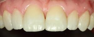 Poprawa kształtu zębów kompozytem.