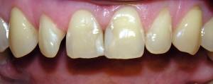 Wybielanie i korekta kształtu zębów kompozytem.