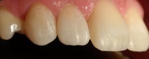 Poprawa kształtu i zamknięcie szpar między zębami kompozytem.