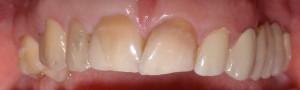 Kompleksowa poprawa harmonii uśmiechu: licówki, korony pełnoceramiczne oraz most metalowo-ceramiczny.