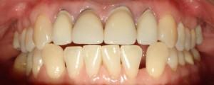 Korony pełnoceramiczne na zębach górnych oraz zamknięcie szpar kompozytem.
