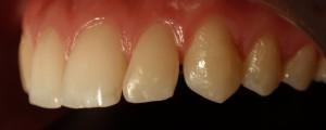 """Zamknięcie szpar oraz zmiana kształtu zębów na """"mniej agresywny"""" przy pomocy kompozytu."""