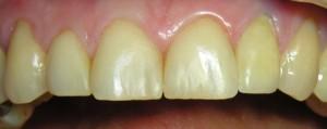 Korekta kształtu zębów kompozytem oraz korona pełnoceraiczna.