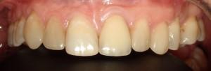 Poprawa kształtu zębów i ich symetrii kompozytem.