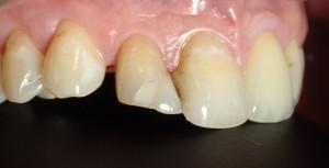 Poprawa kształtu zębów i zamknięcie szpar kompozytem.