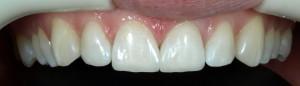 Korekta kształtu zębów oraz zamknięcie szpar kompozytem.
