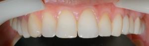 Poprawa harmonii uśmiechu wraz ze zmianπ osi zębów kompozytem.