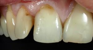 Zmiana kształtu zębów i wymiana wypełnień kompozytowych.