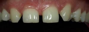 Zmiana kształtu zębów i zamknięcie szpar kompozytem.