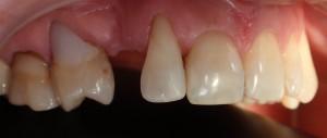 Kompleksowa rehabilitacja: korona na implancie, korony pełnoceramiczne i metalow-ceramiczne oraz komozyt.