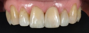 Poprawa estetyki uśmiechu: wybielanie wewnętrzne zębów martwych oraz zmiana kształtu zębów kompozytem.