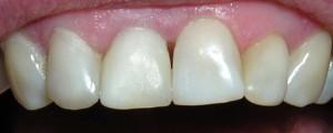 Wybielanie wewnętrzne zęba martwego oraz nowe wypełnienie kompozytowe.