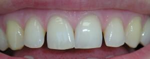 Zamknięcie szpar oraz poprawa kształtu zębów kompozytem.