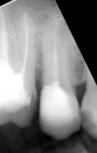 Powtórne leczenie kanałowe górnej piątki. Bardzo rzadka anatomicznie forma zęba z trzema kanałami (ok. 1% przypadków).