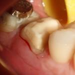 RTG zęba 37: widoczna nadmierna preparacja w poszukiwaniu kanałów mezjalnych