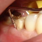 RTG zęba 37 po wypełnieniu kanałów