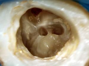 Wnętrze zęba 37 w momencie rozpoczęcia leczenia pod mikroskopem