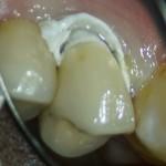 RTG zęba po wypełnieniu kanałów: oddzielny kanał ML oraz łączące się cieśnią ML i D z osobnymi otworami wierzchołkowymi