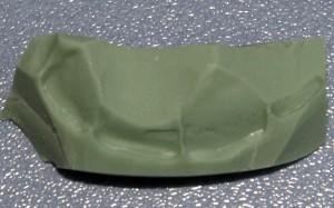 Wytrawienie szkliwa zębów filarowych 36% kwasem ortofosforowym.