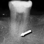 Dokładna analiza RTG pozwala dostrzec złamane przy wierzchołku narzędzie