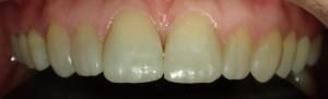 Ostateczny wygląd zębów.