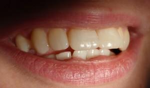 Uśmiech zadowolonej pacjentki. Stan po 6 miesiącach od przeprowadzonej korekty.