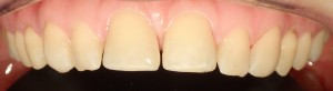 Estetyka górnych zębów pozostawia dużo do życzenia – wychylone siekacze centralne, tremy, matowe i zużyte wypełnienia.