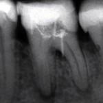 Rtg zęba 36 przed leczeniem.