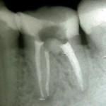 Rtg zęba 36 po wstępnej odbudowie i przeprowadzonym leczeniu endodontycznym.