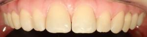Korekta kształtu zębów w programie Photoshop pozwala dostrzec możliwy do uzyskania efekt.