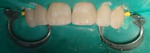 Gotowa korekta kształtu zębów 13-23 w chwilę po zakończeniu pracy.