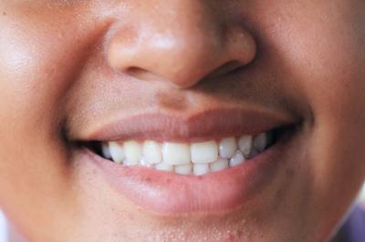 poprawa esteyki uśmiechu